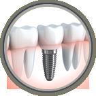Dental Implants Clinton, NJ