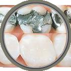 Teeth Whitening Clinton, NJ
