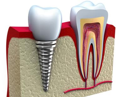 dental implants dentist in Clinton NJ