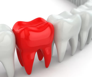 Emergency dentist in Clinton NJ