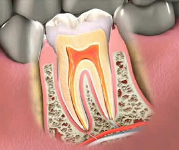 Root canal treatment Clinton NJ